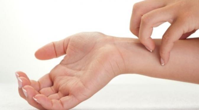 Obat Herbal Untuk Mengobati Eksim Yang Menahun