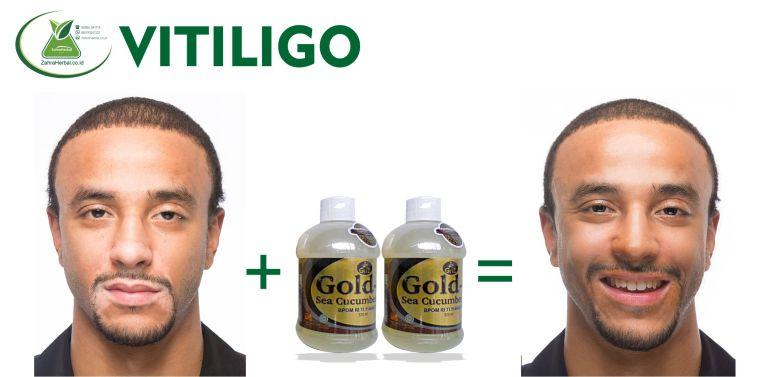 Hal Inilah Yang Harus Dilakukan Penderita Vitiligo