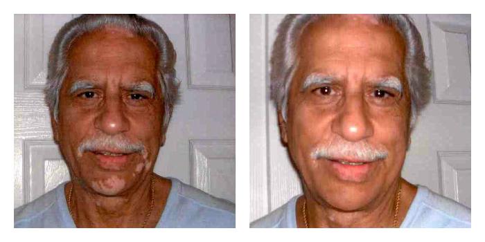 Obat Herbal Penghilang Vitiligo